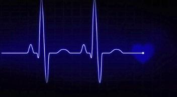 ecm-fisioterapia-corso-fad-10-crediti-interpretazione-dellelettrocardiogramma