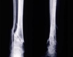ecm-fisioterapia-corso-fad-16-guarigione-delle-fratture
