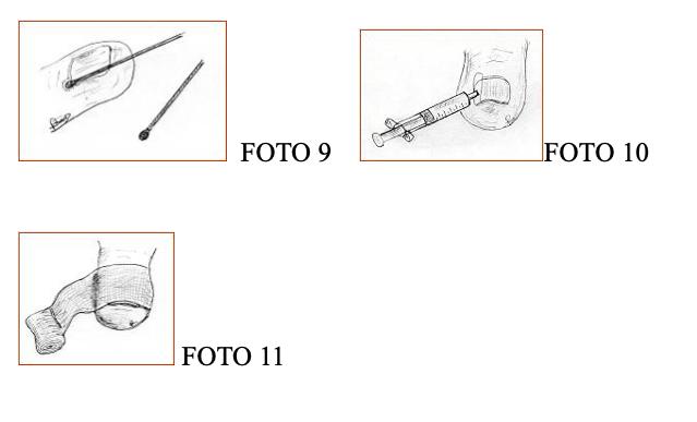 unghia incarnita fig 9 10 11