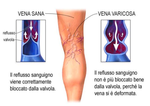 dolore gambe patologie vascolari