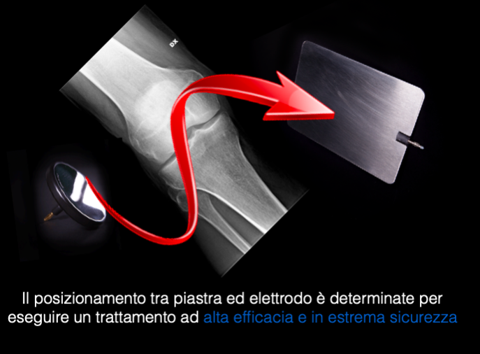 tecarterapia geometria fra piastra ed elettrodi