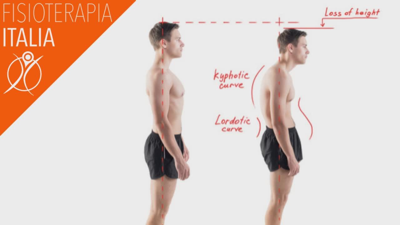 alterazione curve difotiche fisiologiche