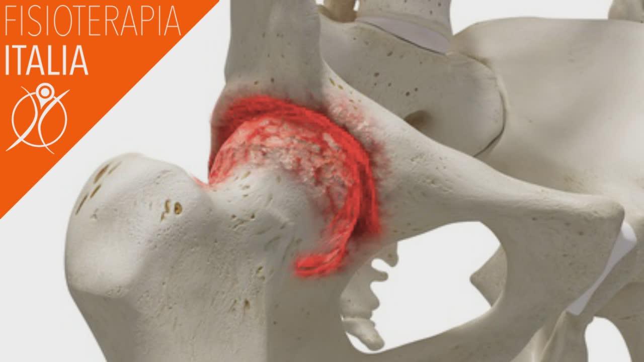 artrosi dell'anca dolore e rigidità