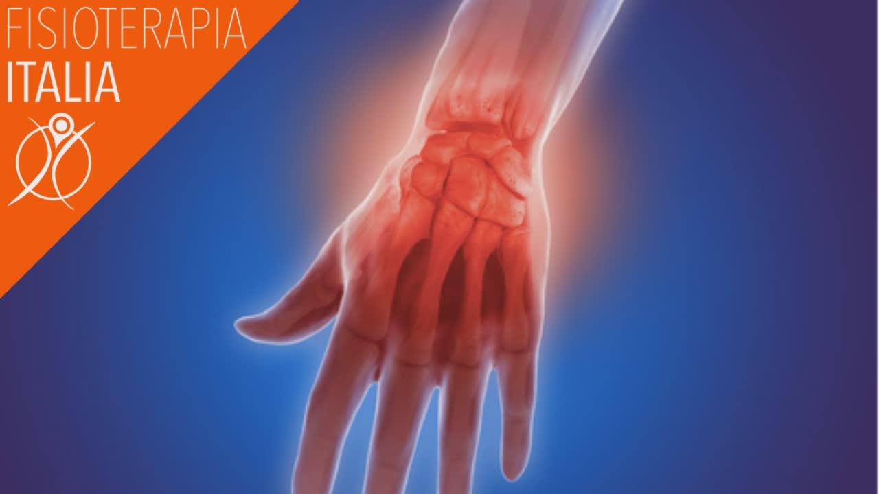 artrosi e rizoartrosi della mano cosa sono