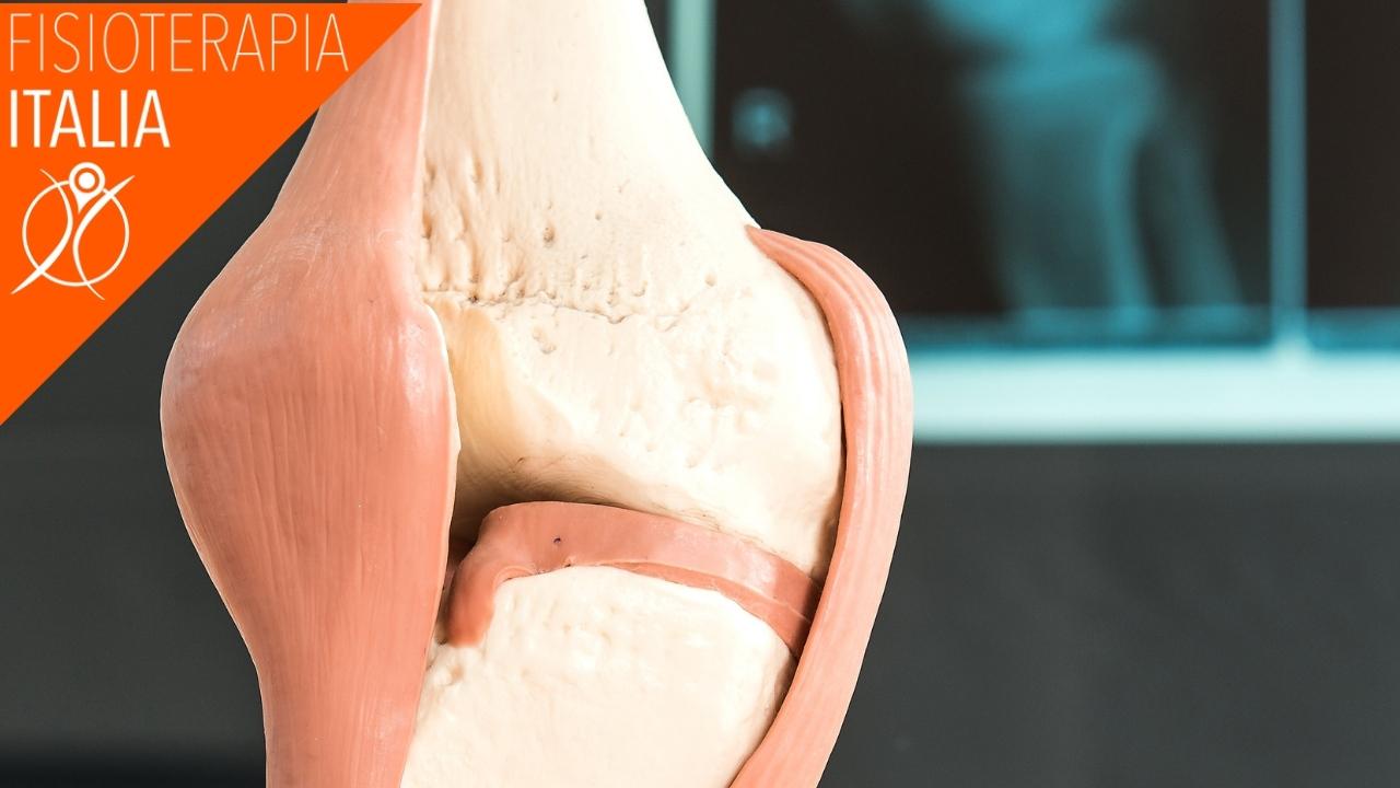 artrosi ginocchio classificazione