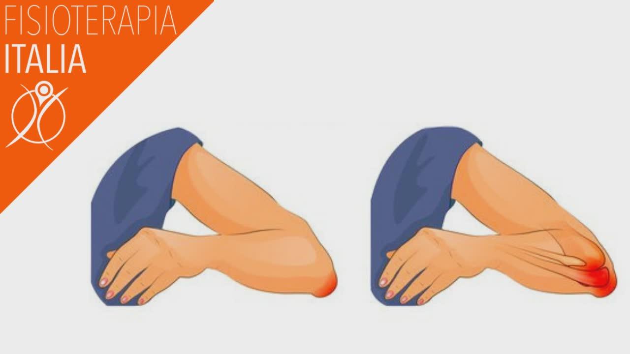 borsette del gomito quali sono i sintomi