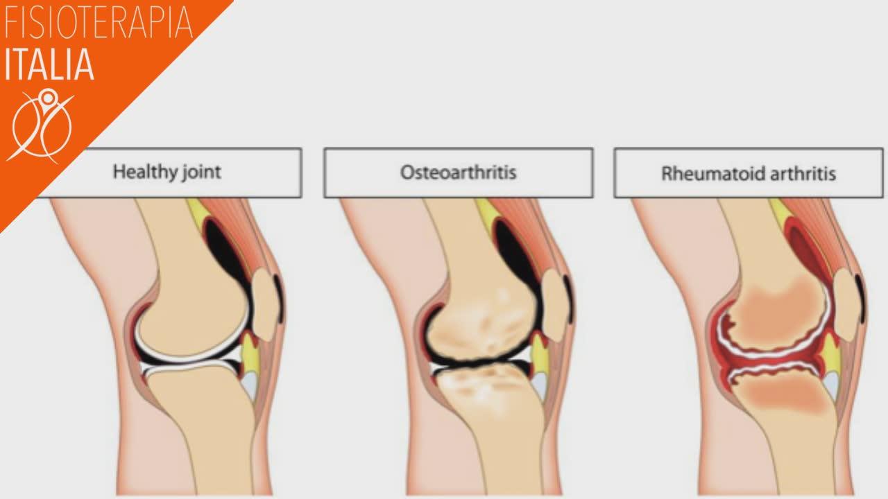 cartilagine e artrosi