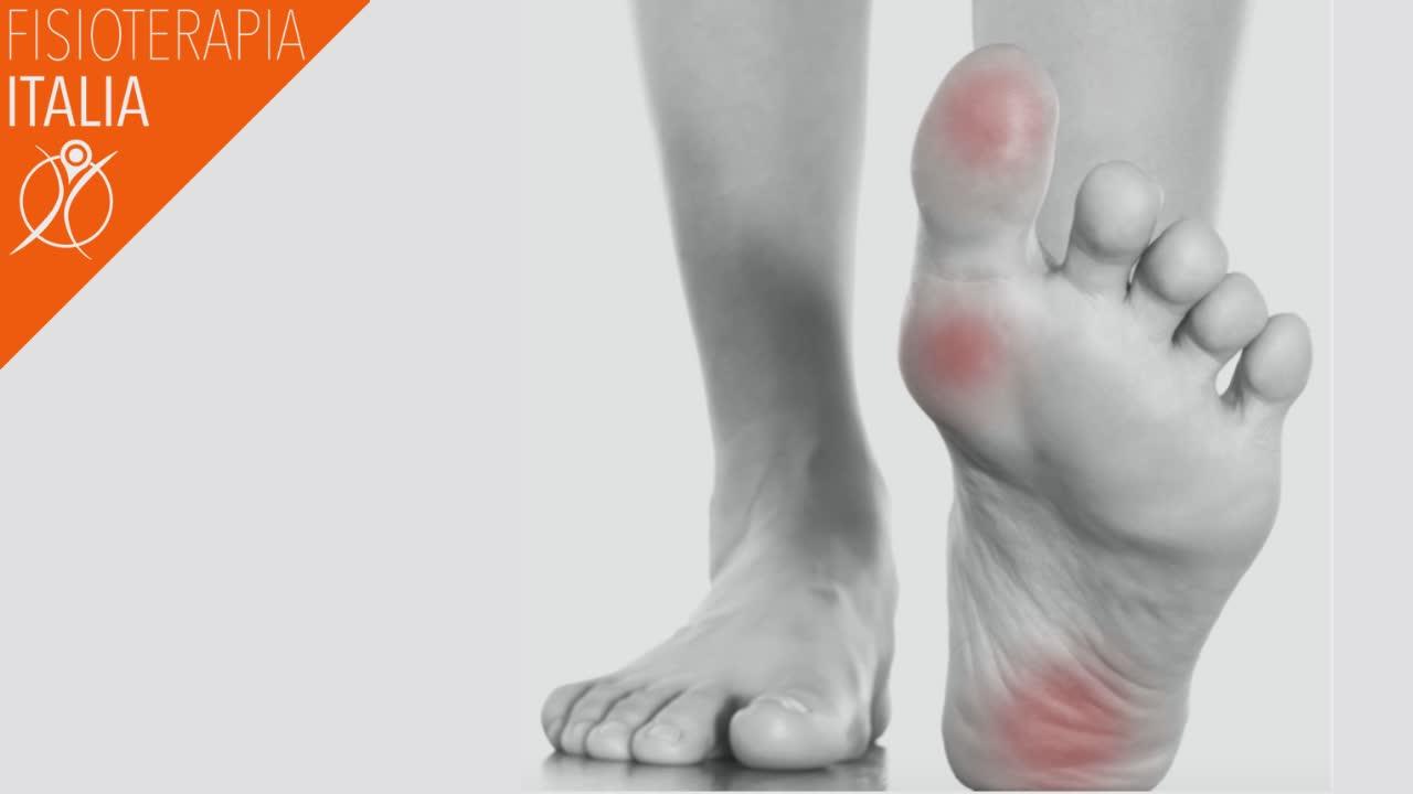 cause del dolore alla pianta del piede