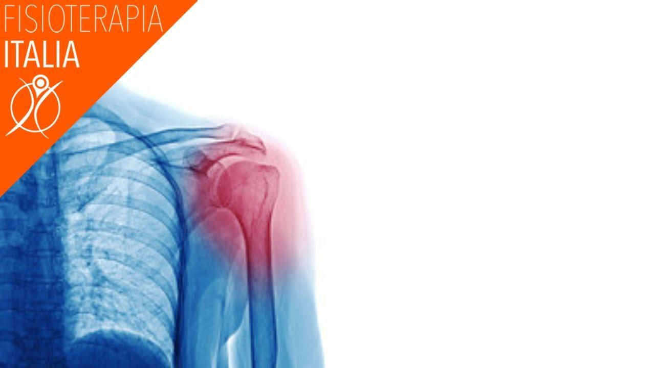 cause periartrite alla spalla