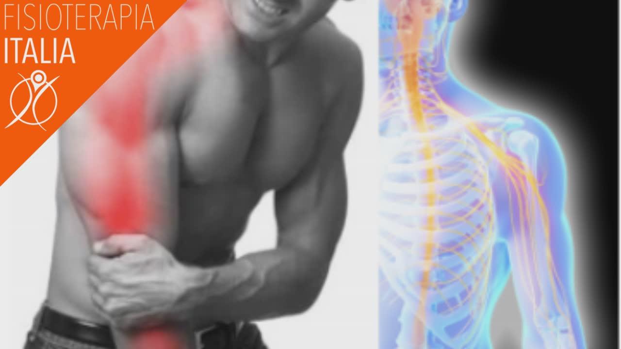 cervicobrachialgia sintomi