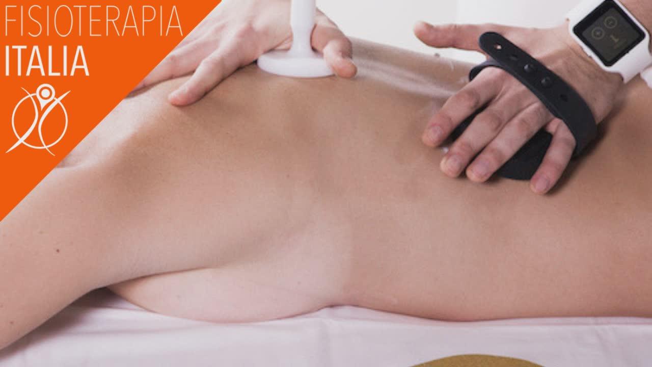 contratture muscolari dorsali come aiuta la tecarterapia