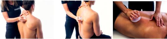 cupping massage per il trattamento della fascia