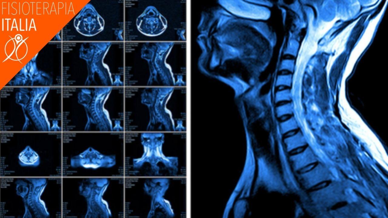 diagnosi colpo di frusta digitale