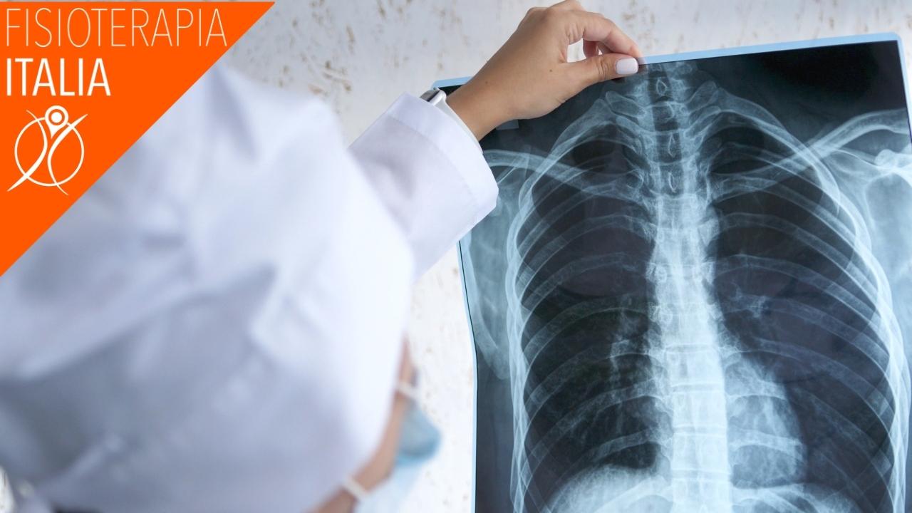 diagnosi frattura costole