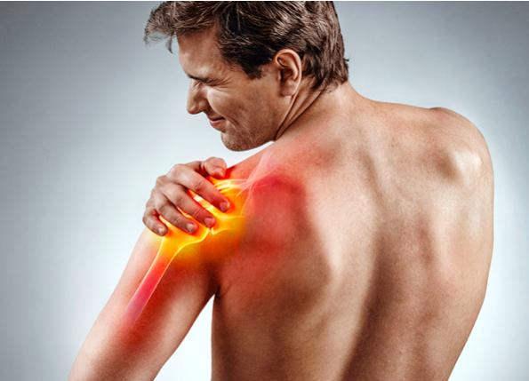 discinesia spalla dolore muscolare