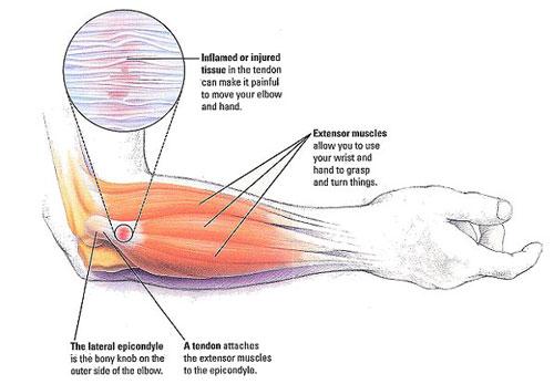 Dolore al gomito: tre condizioni più diffuse