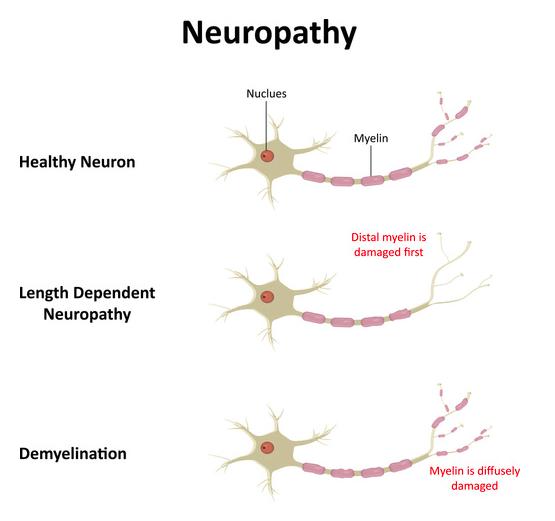 dolore cronico neuropatico cosa si è danneggiato