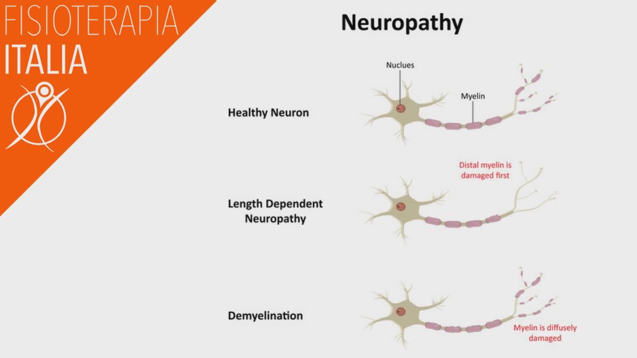dolore cronico neuropatico cosa viene danneggiato