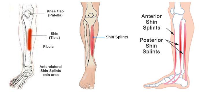 dolore gamba dopo corsa