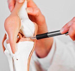 dolore dietro al ginocchio menisco