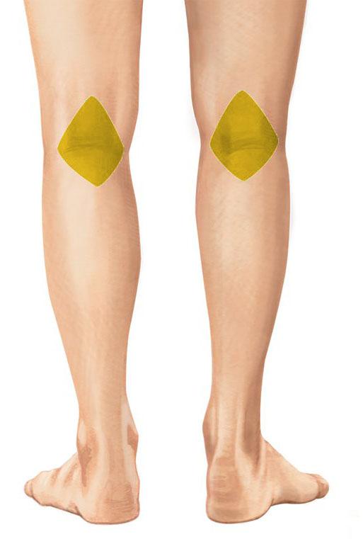 Dolore dietro al ginocchio: cosa lo provoca e quali sono i..