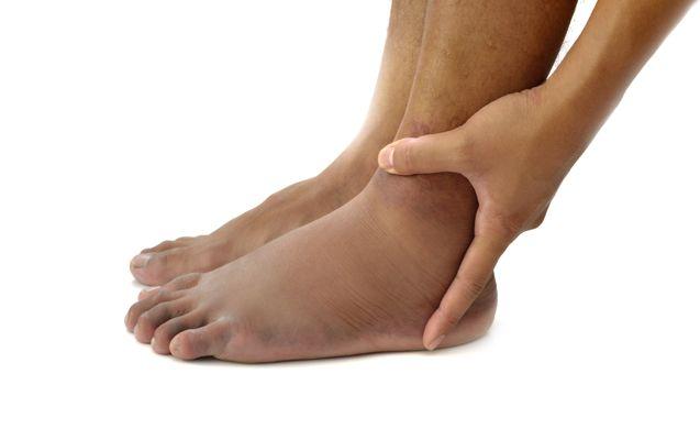 Ritenzione idrica e gambe gonfie: rimedi e dieta