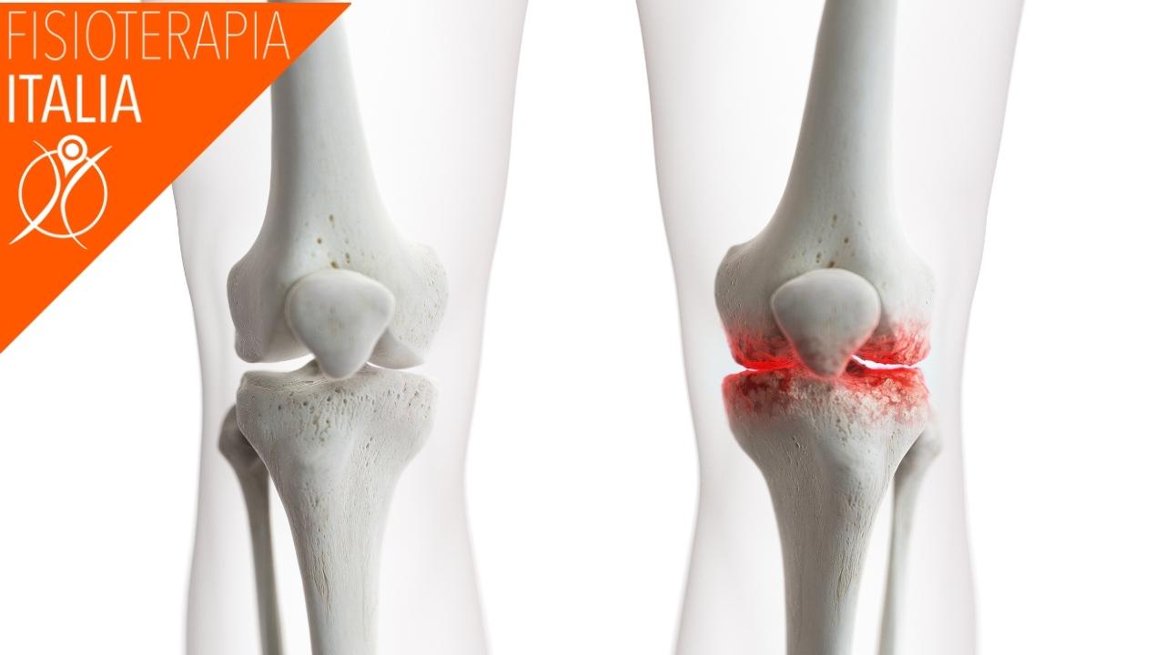 effetti del artrosi ginocchio