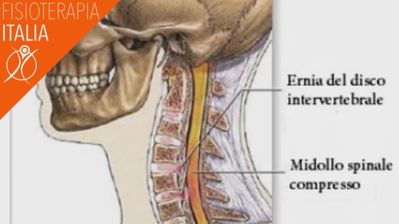 ernia del disco cervicale intervertebrale