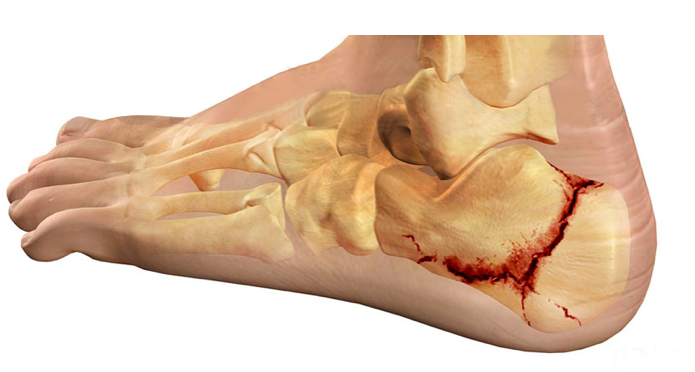 frattura del calcagno cause e trattamento