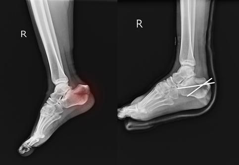 frattura del piede diagnosi e intervento terapeutico
