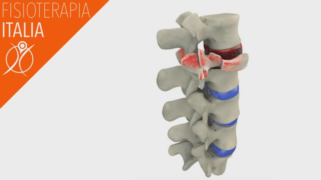 fratture vertebre dorsali diverse forme e interventi