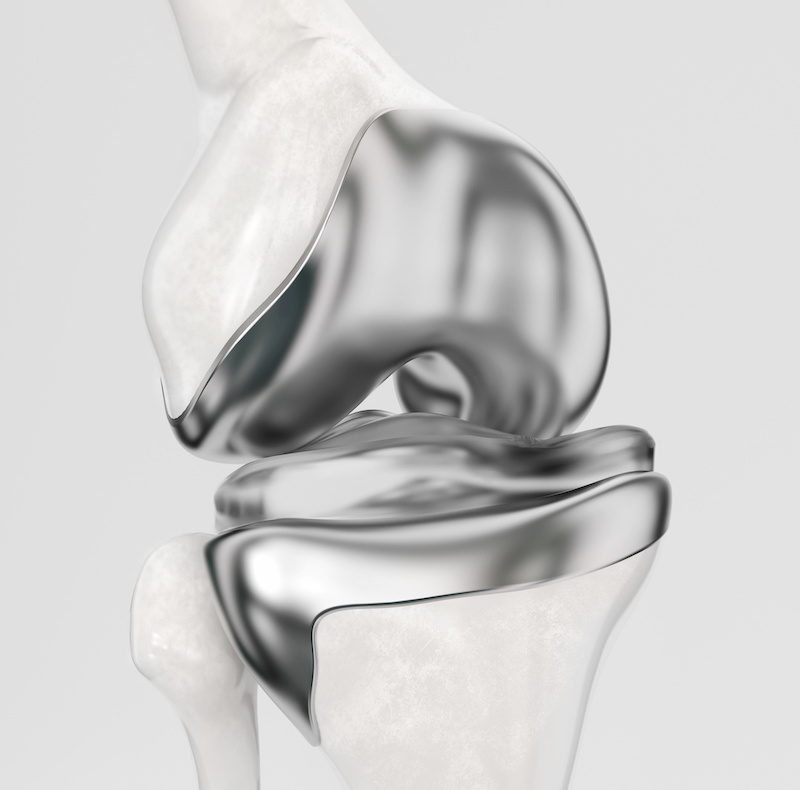 ginocchio chirurgia e protesi