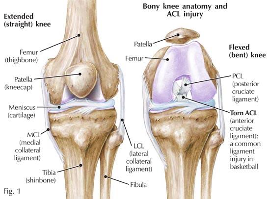Rottura del tendine rotuleo: riabilitazione e recupero