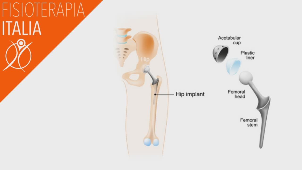 la protesi d'anca la fisioterapia nel post chirurgico