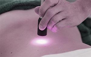 laserterapia fisioterapia