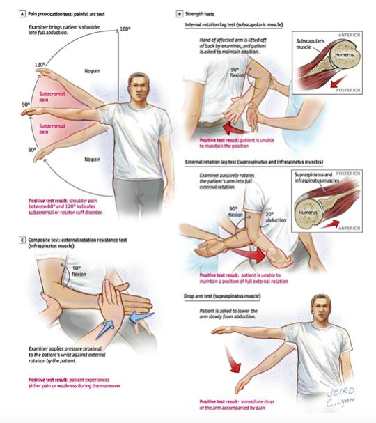 lesione cuffia dei rotatori test per la valutazione