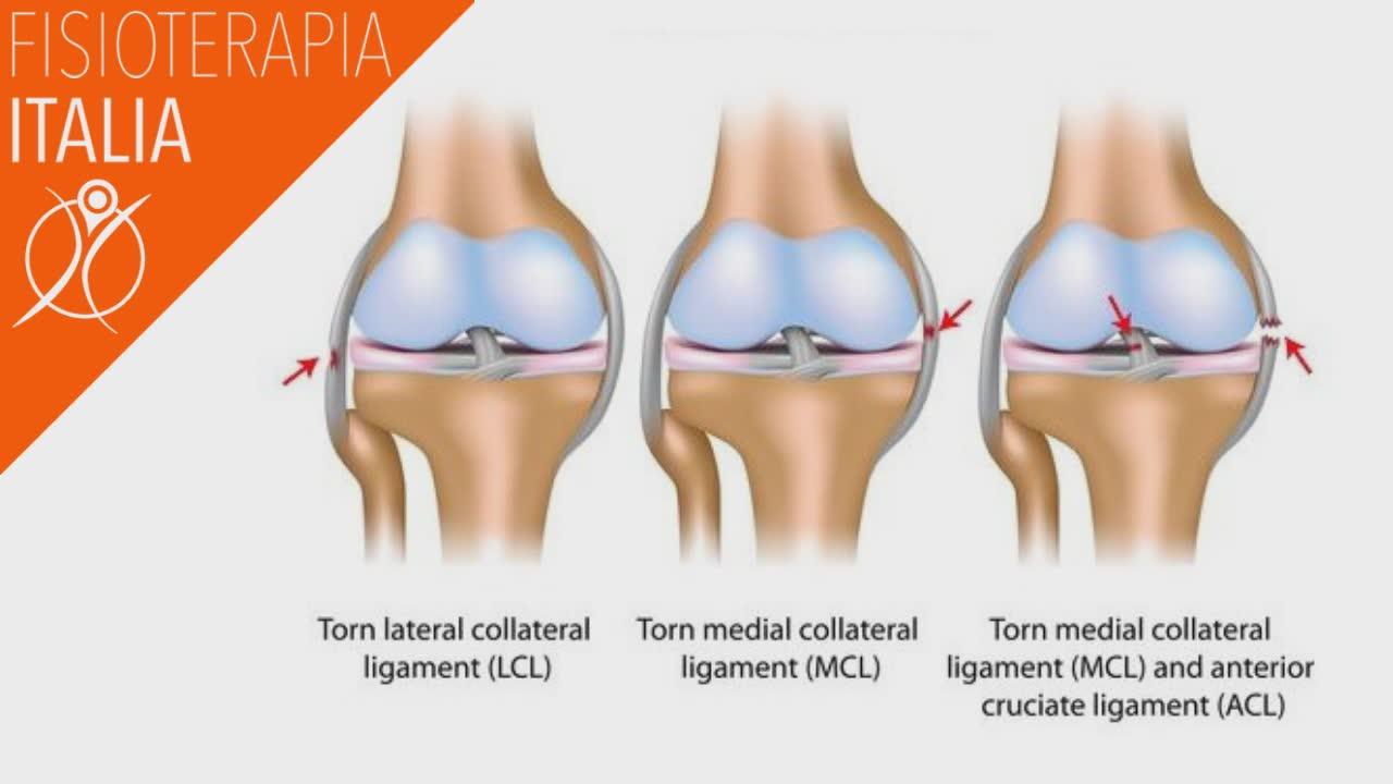 lesione dei legamenti come interviene la chirurgia