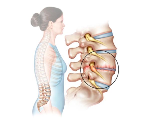 mal di schiena e fisioterapia