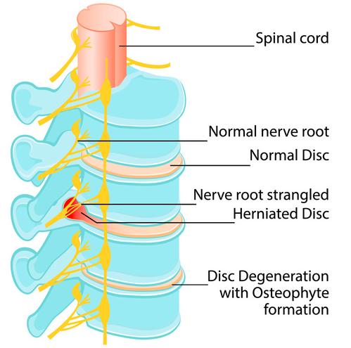 mal di schiena problemi strutturali o funzionali