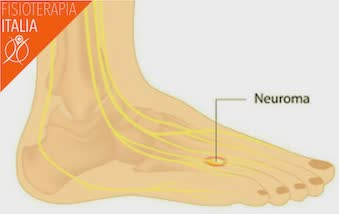 piede caviglia nervi