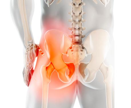 pubalgia cronica negli uomini e dolore ai testicoli