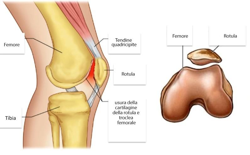 rotula ginocchio