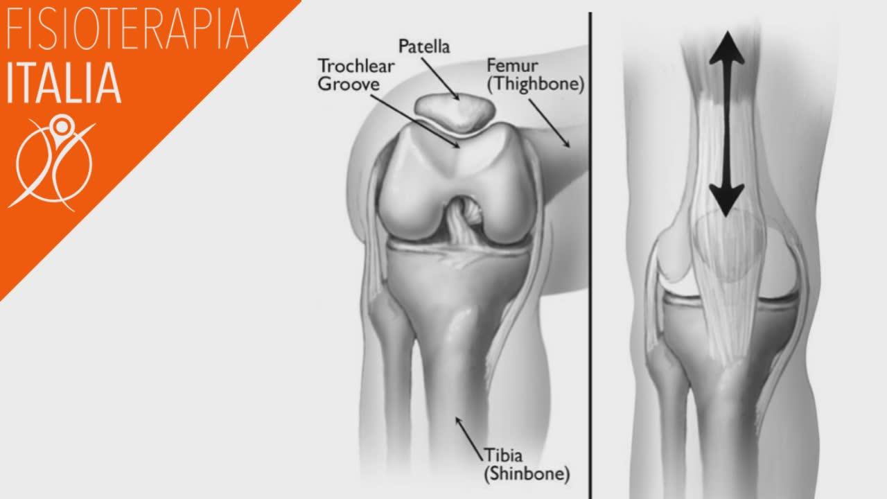 sindrome femoro rotulea incidenza