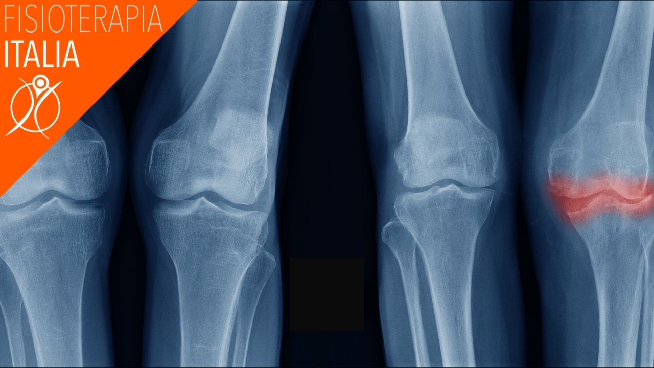 sintomi artrosi al ginocchio