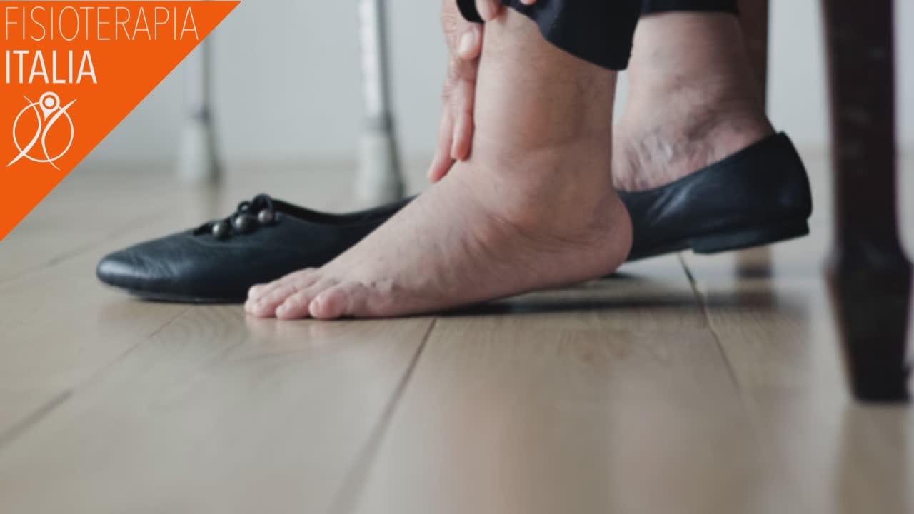 sintomi caviglia gonfia
