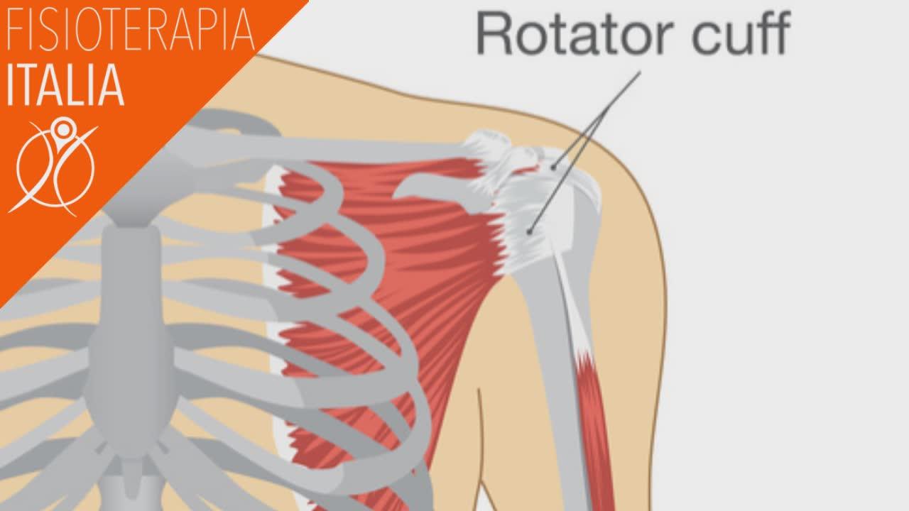 spalla cuffia dei rotatori infiammazione e lesione
