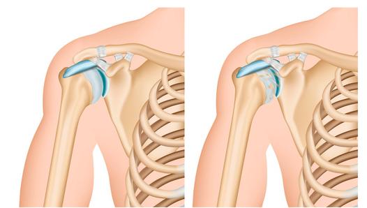 spalla e artrosi cos'è