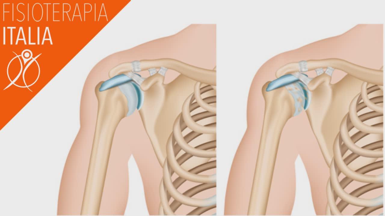 spalla e artrosi cosa sono