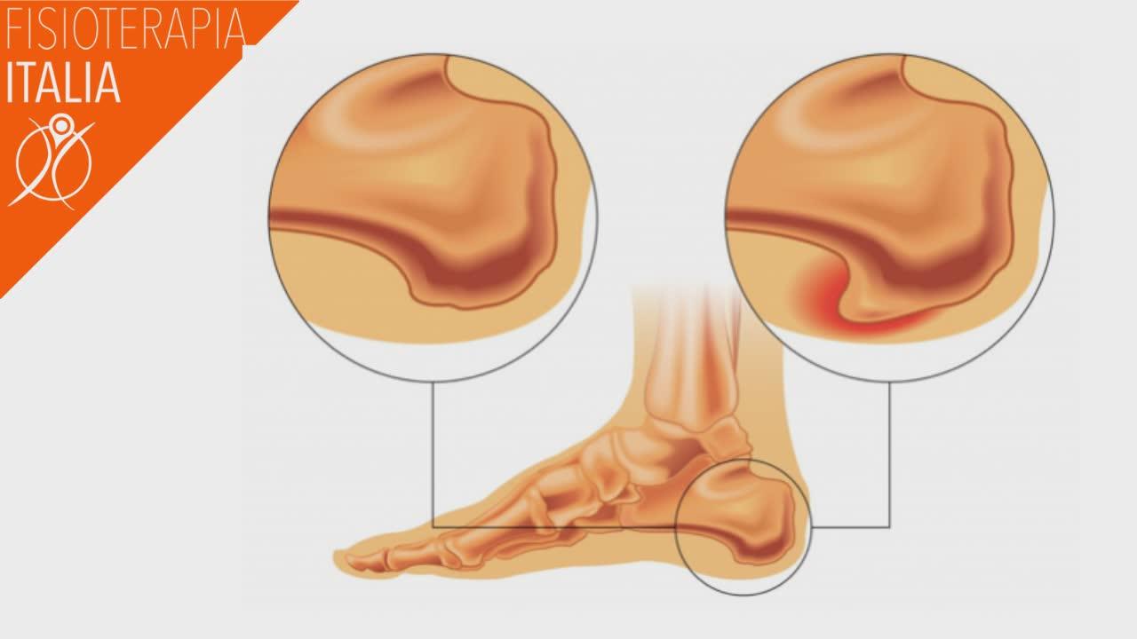 spina calcarea sintomi