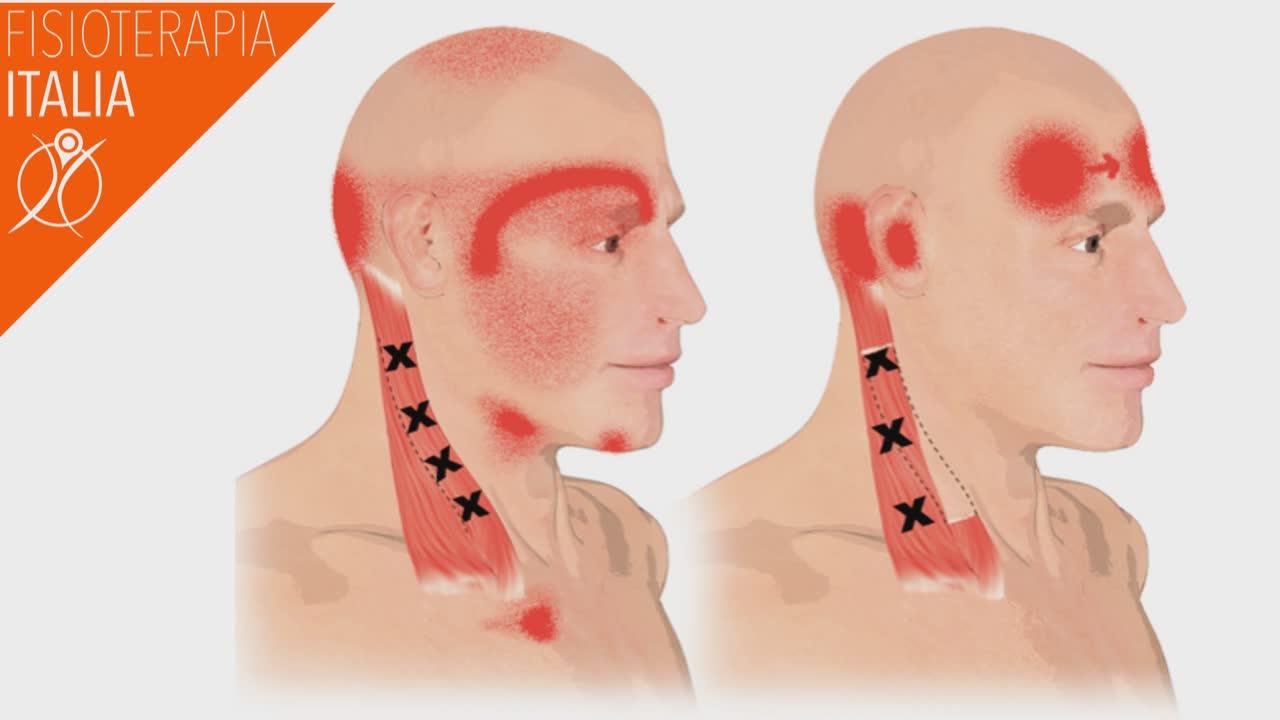 sternocleidomastoideo esercizi propriocettivi